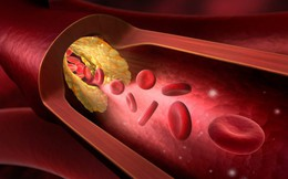 """Không chỉ người béo, gầy cũng có thể bị mỡ máu cao: 6 thực phẩm nên ăn để """"tiêu"""" mỡ nhanh"""