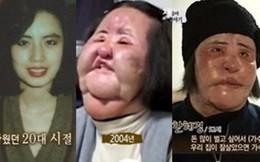 """""""Thảm hoạ dao kéo"""" Han Mi Ok qua đời ở tuổi 57: Tuổi trẻ điên cuồng thẩm mỹ, mua silicon, dầu ăn ở chợ đen về tự tiêm"""