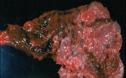 Chuyên gia vạch mặt thủ phạm gây 90% ca ung thư phổi ở VN: Nhiều người biết nhưng chưa sợ