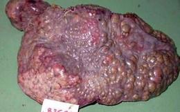 """Tại sao đa số người ung thư gan đều tử vong: Biết sớm điều này sẽ vượt qua """"cửa tử"""" dễ hơn"""