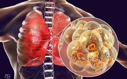 2 cách đơn giản của Đông y để chăm sóc phổi hiệu quả: Ai làm được phổi sẽ khỏe và ít bệnh