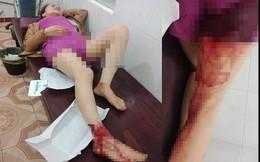 Chị dâu tố em rể hành hung phải nhập viện với nhiều thương tích