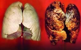 Căn bệnh ung thư gây tử vong nhanh nhưng 90% có thể chữa khỏi nếu nhận biết dấu hiệu này