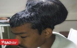 Người đàn ông mang khối u não có kích cỡ to hơn cả đầu