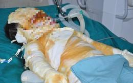 Thái Bình: Bé gái 4 tuổi bỏng rất nặng vì cháy nhà