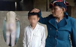 Con trai bị bố dượng đánh nhập viện vì nghi trộm tiền của hàng xóm