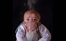 Những nguy cơ sức khỏe của trẻ sinh non
