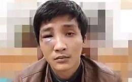 Bắt giữ thanh niên 'hổ báo' quậy phá, đập điện thoại của người dân