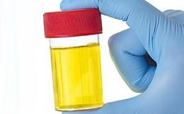 Những dấu hiệu bất thường của nước tiểu cho thấy bạn đang có bệnh