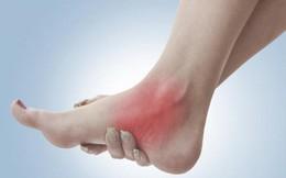 Bong gân – Làm sao để sơ cứu đúng cách, tránh ảnh hưởng chức năng xương khớp?