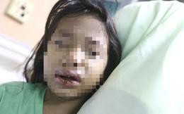 Đến đón con ở nhà chồng cũ, mẹ đau đớn phát hiện con bị mẹ kế bạo hành ép uống nước sôi