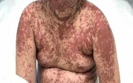 Bé gái nổi ban đỏ toàn thân sau khi uống thuốc hạ sốt