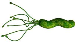 Loại bỏ vi khuẩn HP tránh nguy cơ ung thư dạ dày