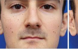 Bí mật sống ảo: Chụp selfie khiến mũi bạn trông to hơn thực tế