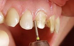 Mốt tàn sát răng thật lắp răng giả