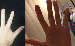 """Đây là lí do của những ngón tay """"cong gấp khúc"""" gây sốt cư dân mạng - liệu có """"bẻ thẳng"""" được không?"""