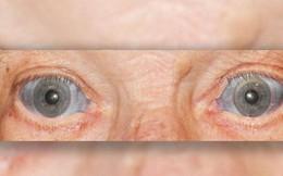 Điều gì đã khiến lòng trắng mắt của người đàn ông này biến thành màu xanh?