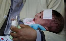 Loét ở khoang miệng: Bác sĩ cảnh báo biến chứng nguy hiểm do mắc sởi
