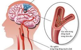 HT Strokend với các thảo dược quý hỗ trợ phòng ngừa đột quỵ do cục máu đông