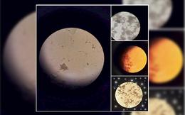 """Loạt ảnh """"mặt Trăng"""" được chia sẻ nhiều trên MXH thực chất là... phân dưới kính hiển vi"""