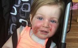 Cháu gái 17 tháng tự đổ nước sôi lên người, bà nội đưa cháu vào nơi này ngay lập tức và được bác sĩ khen ngợi