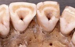 Răng sữa hình xẻng - điểm tiến hóa này chỉ có ở người Đông Á và thổ dân châu Mỹ, nhưng bất ngờ nhất là...