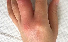 Chủ quan với vết xước lúc làm bếp, nhiễm trùng cả bàn tay
