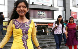 Ám ảnh gương mặt bị tàn phá vì axit của phụ nữ Ấn Độ