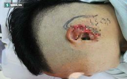 Hà Nội: Thanh niên ngồi nhậu bị bạn nhậu cắt đứt tai