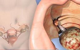 Ung thư buồng trứng và những điều cần biết