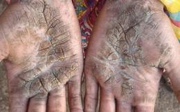 4 đứa trẻ trong một nhà 'hóa đá' vì bệnh da hiếm gặp
