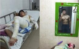 Hành trình phục hồi từ cơ thể bị bỏng nặng 40% đến body cơ bắp khỏe mạnh của chàng trai Thái Nguyên