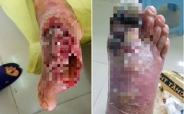 Hà Nội: Bác sĩ phải cắt lọc thịt bàn chân hoại tử cứu sống bệnh nhân tự ý chữa tiểu đường