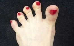 """Nhìn ngay xuống bàn chân soi dấu hiệu bệnh tật """"cư trú"""" trong người: Số 3 rất nguy hiểm!"""