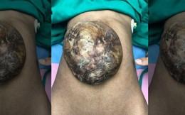 Xót xa cô gái có gan, ruột nằm bên ngoài cơ thể 19 năm