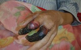 Bị 1 vết xước nhỏ, 8 ngày sau người đàn ông hoại tử 2 ngón tay đen thui, cận kề cửa tử