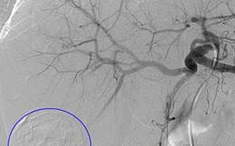 Nút hóa chất động mạch trong điều trị ung thư gan