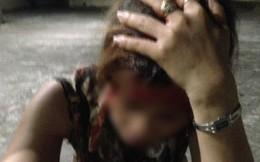 Sốc: Chồng giúp bồ nhí đánh ghen ngược với vợ và con gái khiến nạn nhân chảy máu đầu, phải khâu ngay tại chỗ