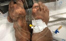 Long An: Người đàn ông bị biến dạng cơ thể nặng vì uống thuốc giảm đau trôi nổi suốt 10 năm trời