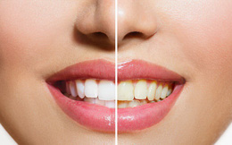 Tại sao răng của chúng ta bị ngả sang màu vàng?