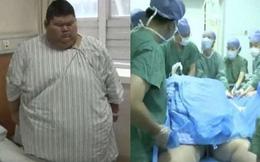 Cắt bỏ 4/5 dạ dày để giảm cân, chàng béo 334kg quyết tâm trở thành huấn luyện viên thể hình