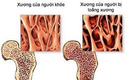 Bác sĩ xương khớp cảnh báo: Nhiều người Việt mắc chứng bệnh này xương chẳng khác gì gỗ mục