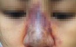 Nâng mũi làm đẹp, người phụ nữ có nguy cơ mù mắt