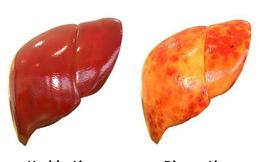 Bệnh nhân xơ gan nên ăn và nên tránh thực phẩm gì