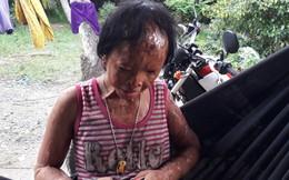 Gia cảnh thương tâm của em bé bị mù do bị tạt axít xin đôi mắt tử tù Nguyễn Hữu Tình