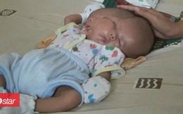 Nhói lòng bé trai sinh ra với hai khuôn mặt, hai bộ não trên cùng một cơ thể