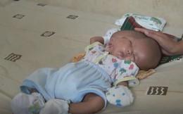 Bé trai Indonesia mắc dị tật hiếm gặp nhất: sinh ra với 2 khuôn mặt và 2 bộ não