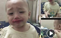 Các mẹ bỉm sữa giật mình khi nhìn thấy em bé miệng toe toét đỏ, nhưng sự thật khiến ai cũng bò lăn ra cười