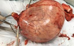 Bụng to như chửa 7-8 tháng, bệnh nhân đi khám phát hiện thứ kinh ngạc