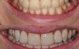 Răng hỏng vì chọn sai kem đánh răng: Chuyên gia khuyến cáo 3 việc hại răng không nên làm